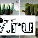 В Италии найден фрагмент древней вставной челюсти